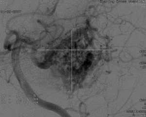 Angiogram image